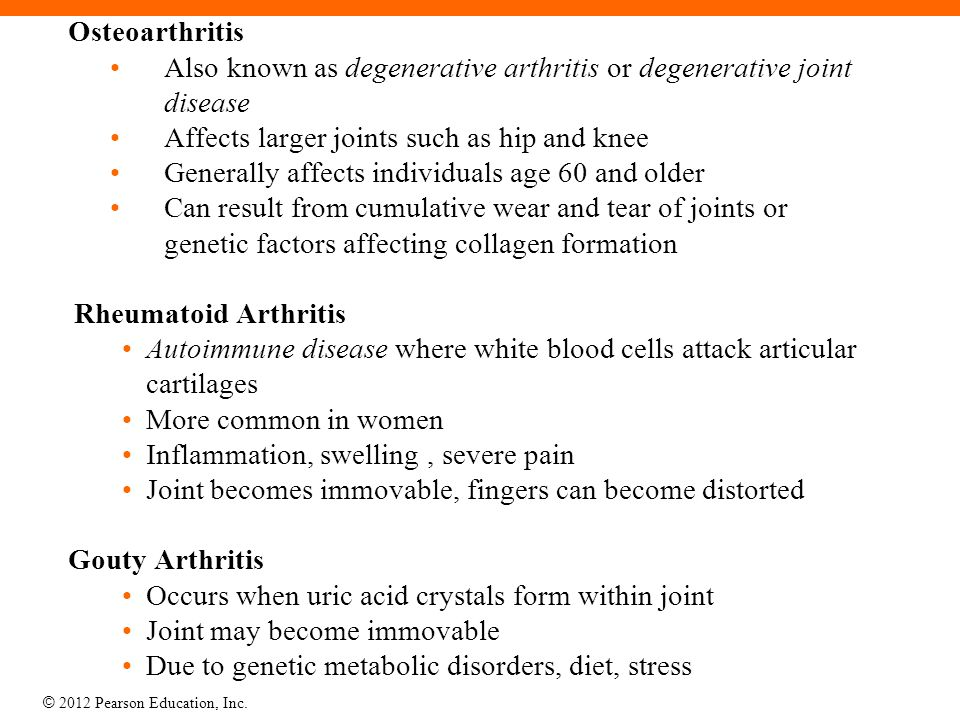 © 2012 Pearson Education, Inc. Osteoarthritis Also known as degenerative arthritis or degenerative joint disease Affects larger joints such as hip and
