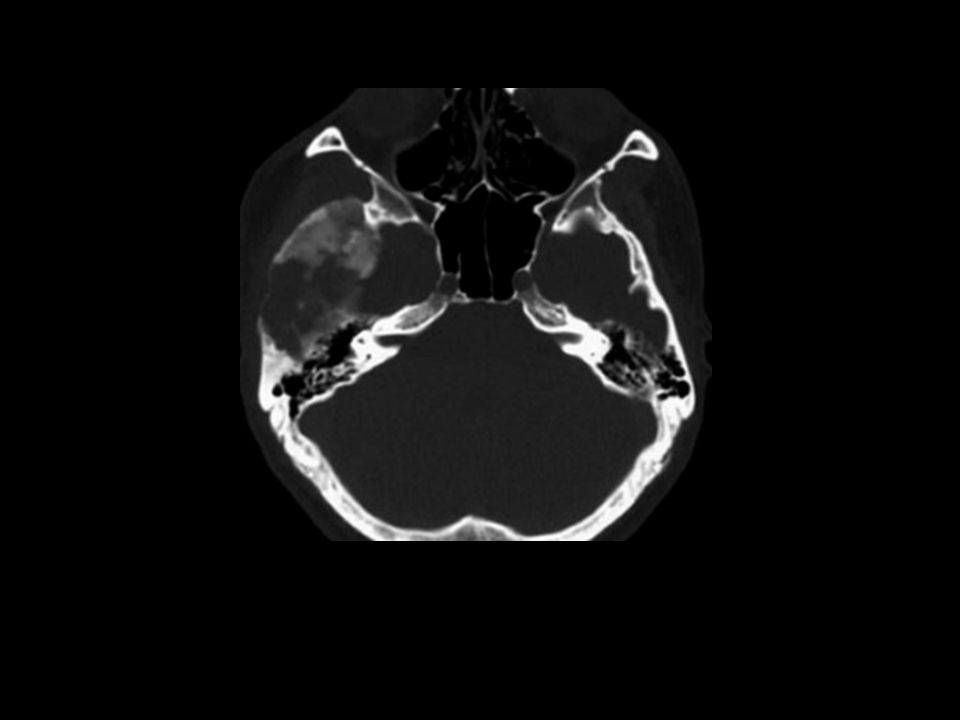 Mixture of dense and radiolucent areas involving the greater wing of the right sphenoid bone.