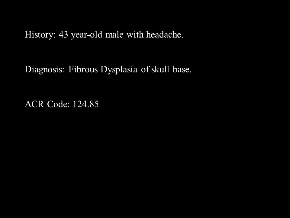 History: 43 year-old male with headache. Diagnosis: Fibrous Dysplasia of skull base. ACR Code: 124.85