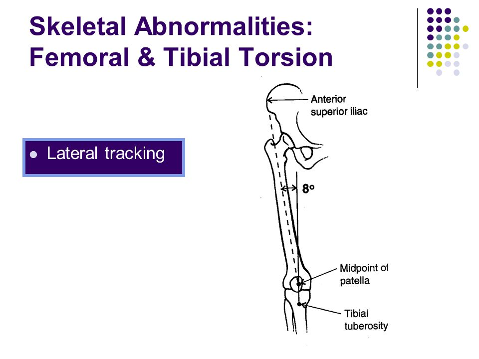 Skeletal Abnormalities: Femoral & Tibial Torsion Lateral tracking