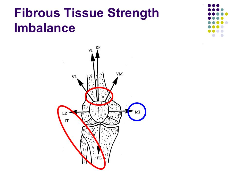 Fibrous Tissue Strength Imbalance IT