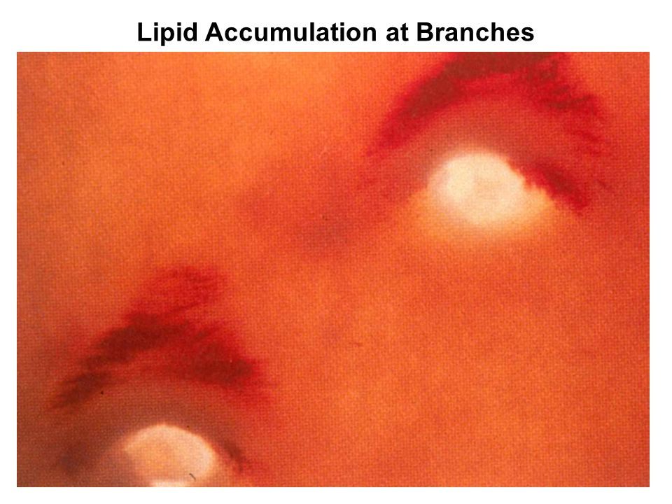 Lipid Accumulation at Branches