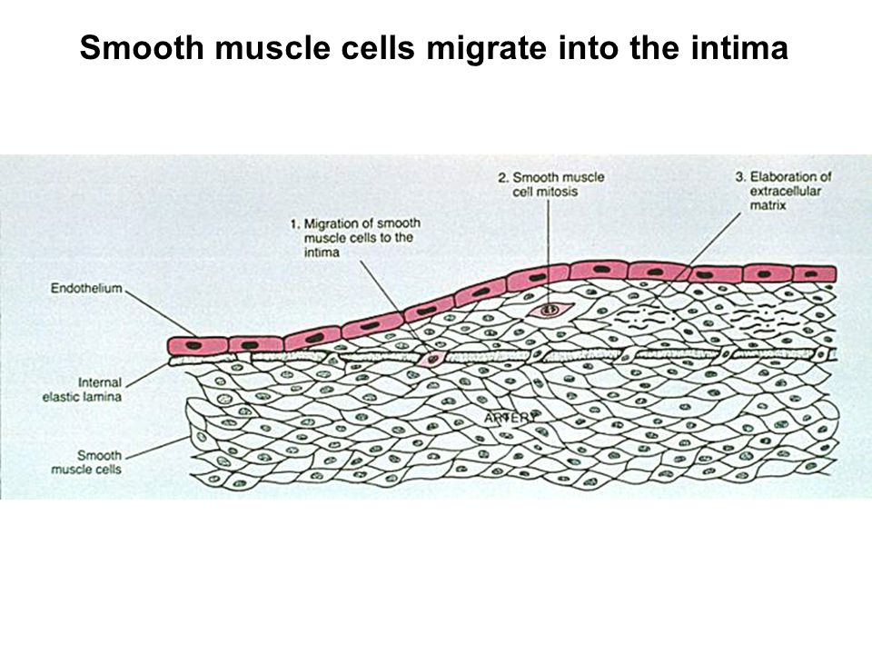 Smooth muscle cells migrate into the intima