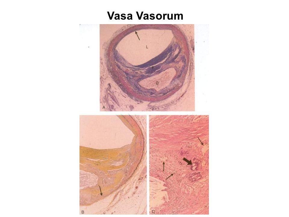Vasa Vasorum