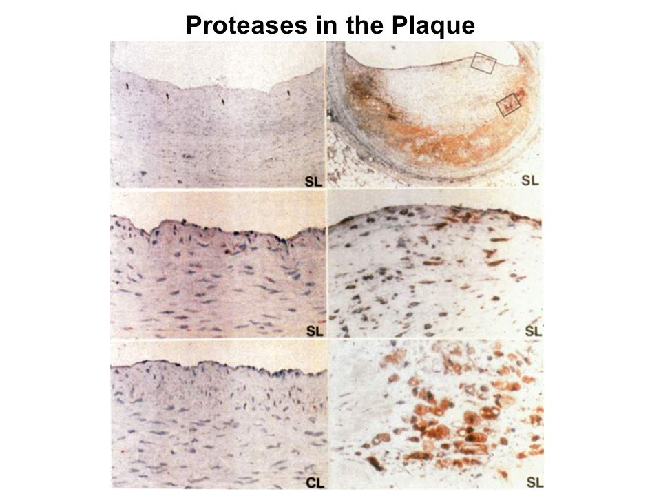 Proteases in the Plaque