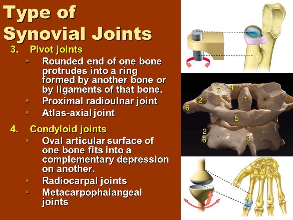 Type of Synovial Joints 3.Pivot joints  Rounded end of one bone protrudes into a ring formed by another bone or by ligaments of that bone.  Proximal