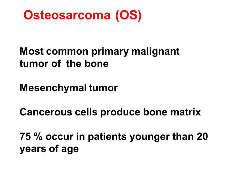Osteosarcoma (OS) Most common primary malignant tumor of the bone Mesenchymal tumor Cancerous cells produce bone matrix 75 % occur in patients younger than 20 years of age
