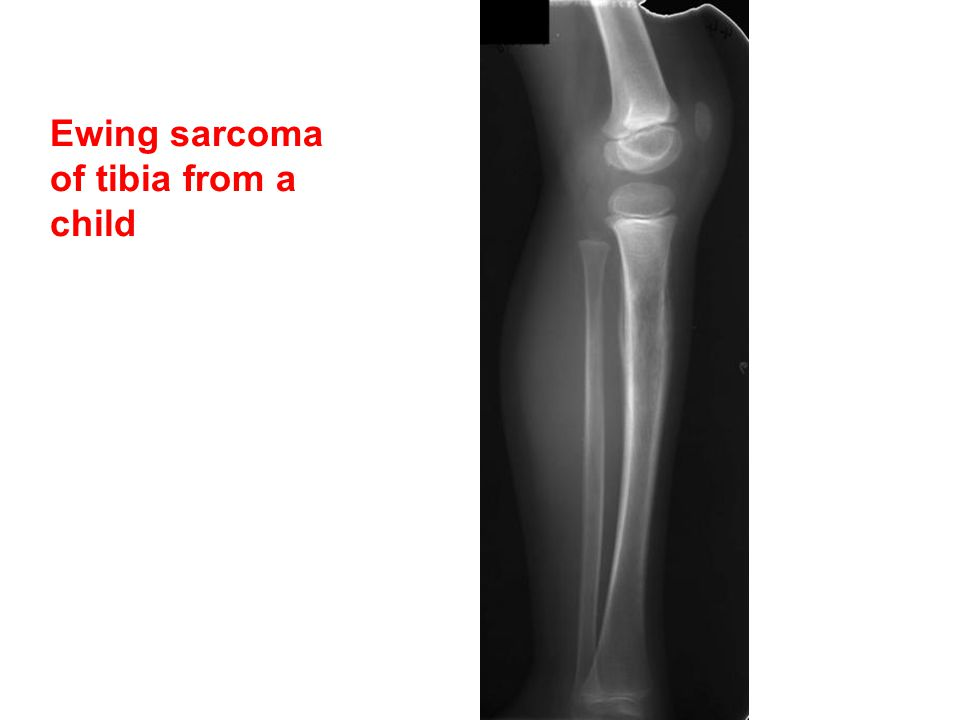 Ewing sarcoma of tibia from a child