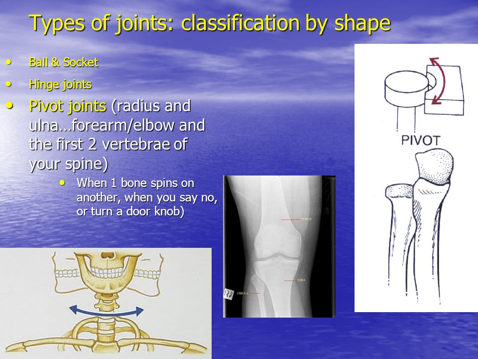 Types of joints: classification by shape Ball & Socket Ball & Socket Hinge joints Hinge joints Pivot joints (radius and ulna…forearm/elbow and the fir