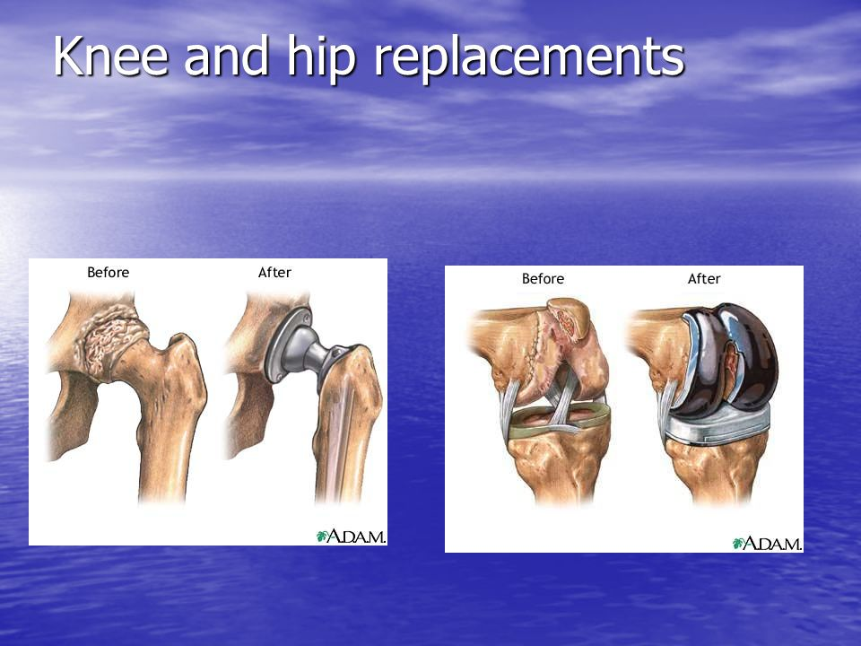 Knee and hip replacements