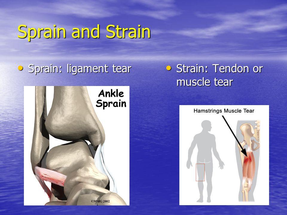 Sprain and Strain Sprain: ligament tear Sprain: ligament tear Strain: Tendon or muscle tear Strain: Tendon or muscle tear