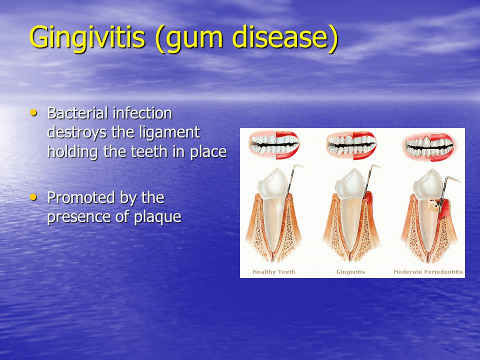 Gingivitis (gum disease) Bacterial infection destroys the ligament holding the teeth in place Bacterial infection destroys the ligament holding the te