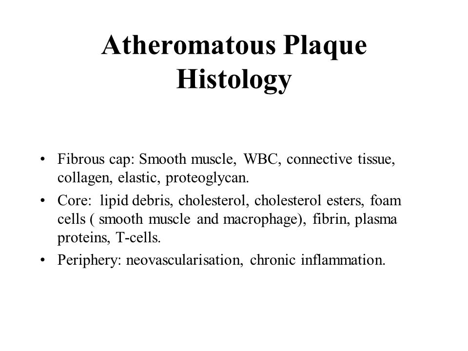 Atheromatous Plaque Histology Fibrous cap: Smooth muscle, WBC, connective tissue, collagen, elastic, proteoglycan.