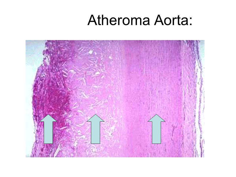 Atheroma Aorta:
