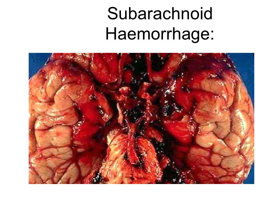 Subarachnoid Haemorrhage: