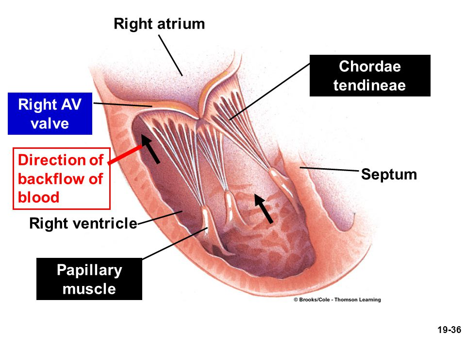 Right atrium Right AV valve Direction of backflow of blood Right ventricle Papillary muscle Chordae tendineae Septum 19-36