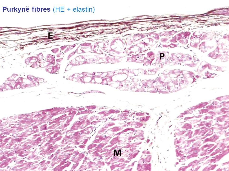 Purkyně fibres (HE + elastin)