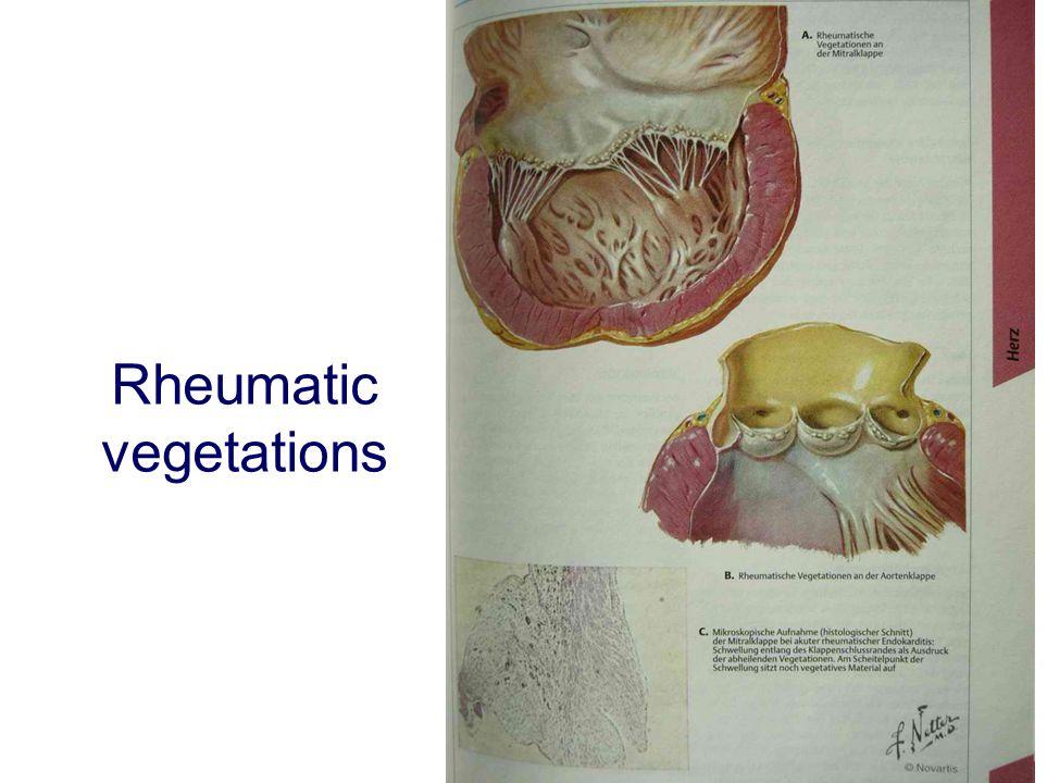 Rheumatic vegetations