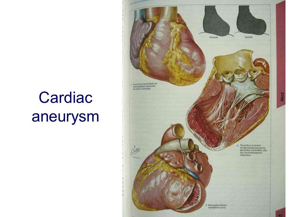 Cardiac aneurysm