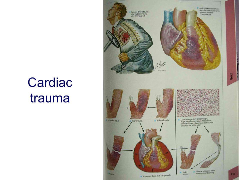 Cardiac trauma