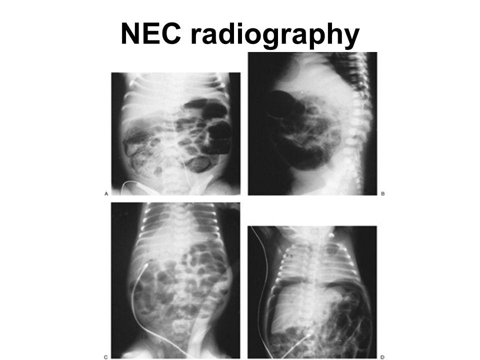 NEC radiography