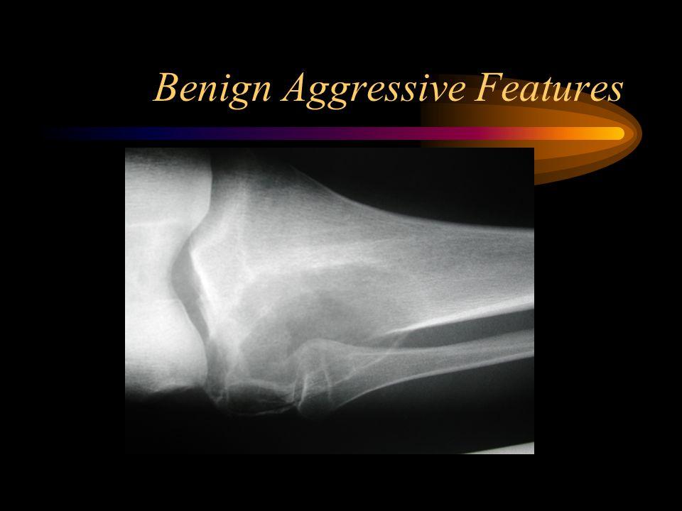 Benign Aggressive Features