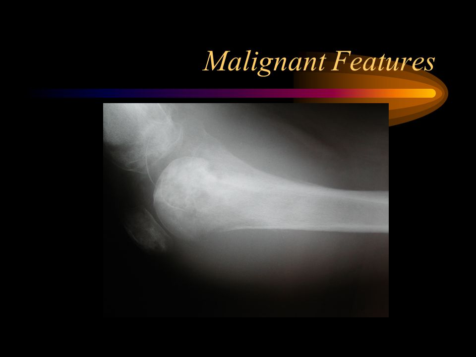 Malignant Features
