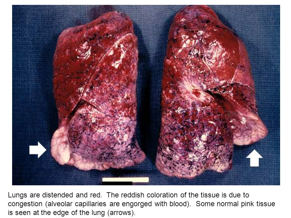 Lungs are distended and red. The reddish coloration of the tissue is due to congestion (alveolar capillaries are engorged with blood). Some normal pin