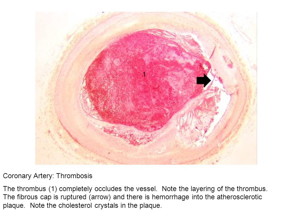 Coronary Artery: Thrombosis The thrombus (1) completely occludes the vessel. Note the layering of the thrombus. The fibrous cap is ruptured (arrow) an