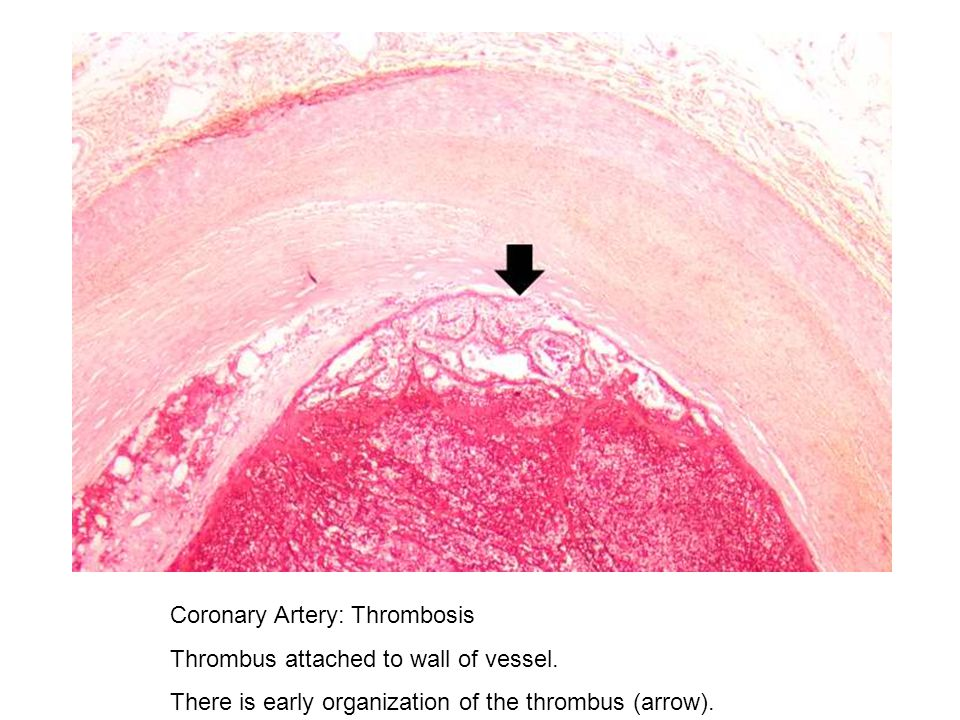 Coronary Artery: Thrombosis Thrombus attached to wall of vessel. There is early organization of the thrombus (arrow).