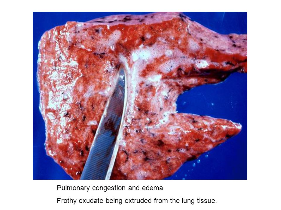 Pulmonary congestion and edema Frothy exudate being extruded from the lung tissue.