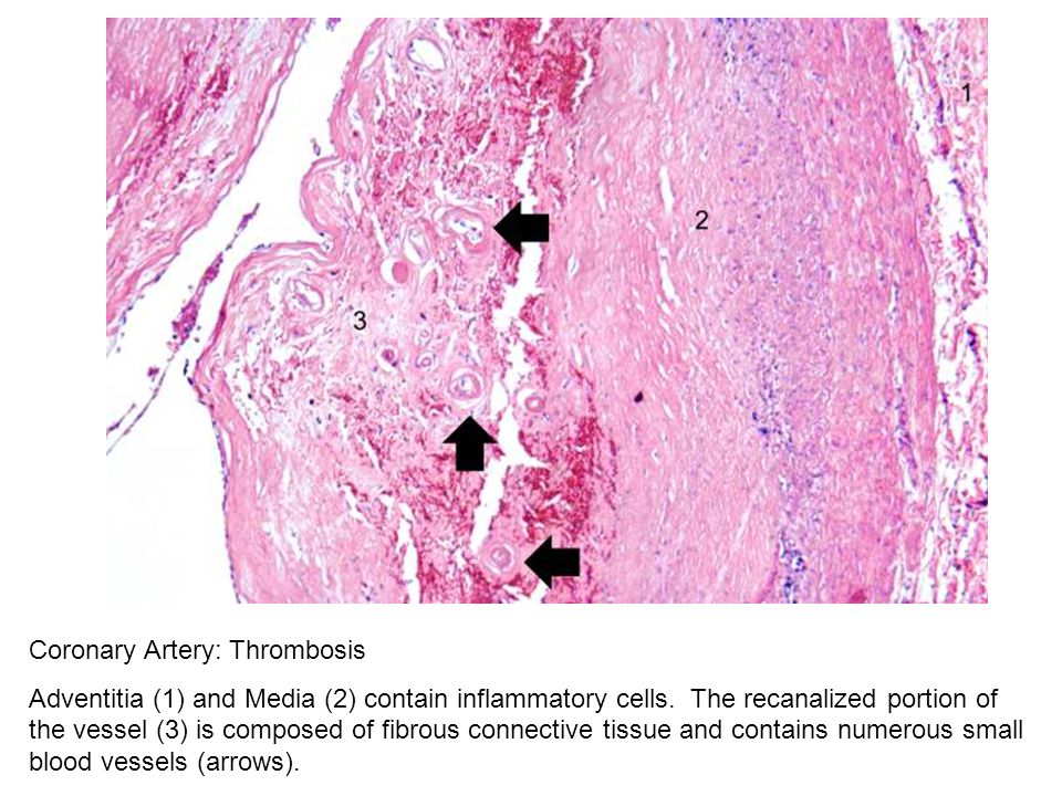Coronary Artery: Thrombosis Adventitia (1) and Media (2) contain inflammatory cells. The recanalized portion of the vessel (3) is composed of fibrous