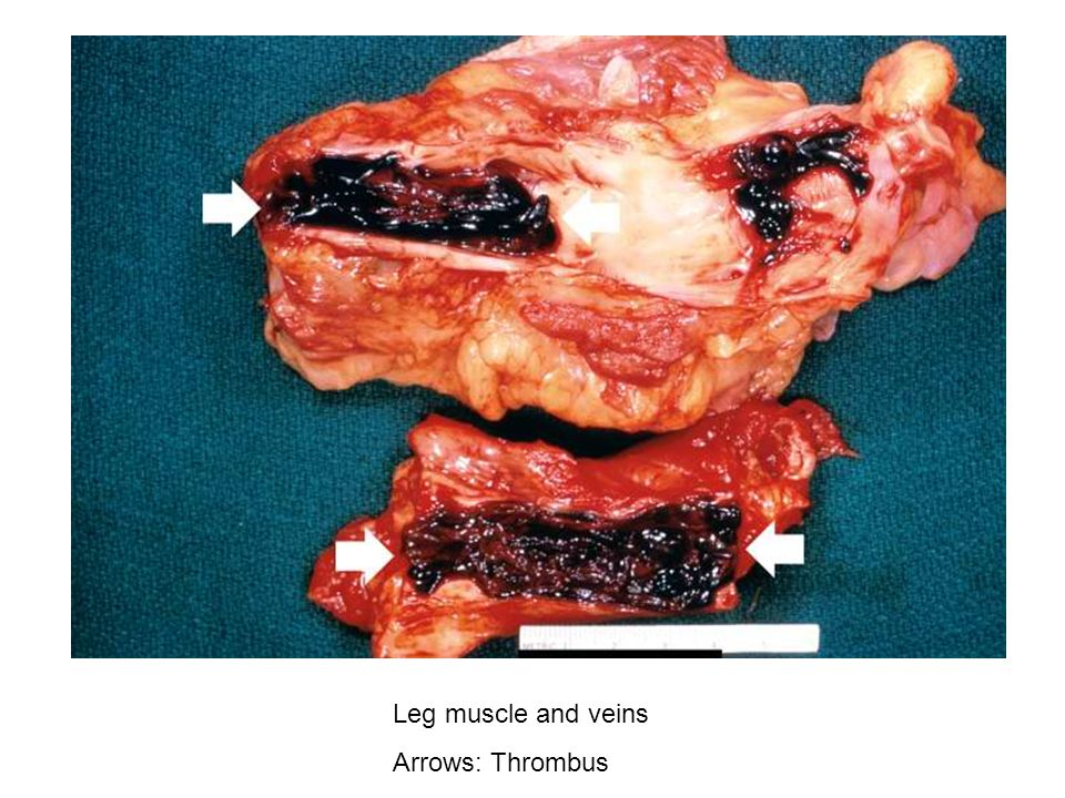 Leg muscle and veins Arrows: Thrombus