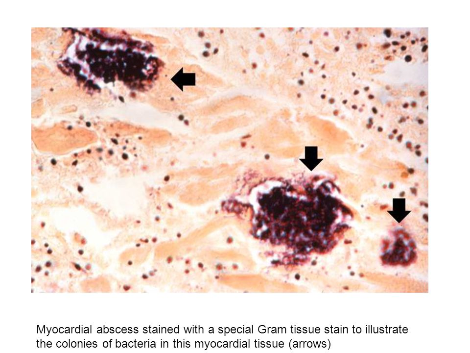 Myocardial abscess stained with a special Gram tissue stain to illustrate the colonies of bacteria in this myocardial tissue (arrows)