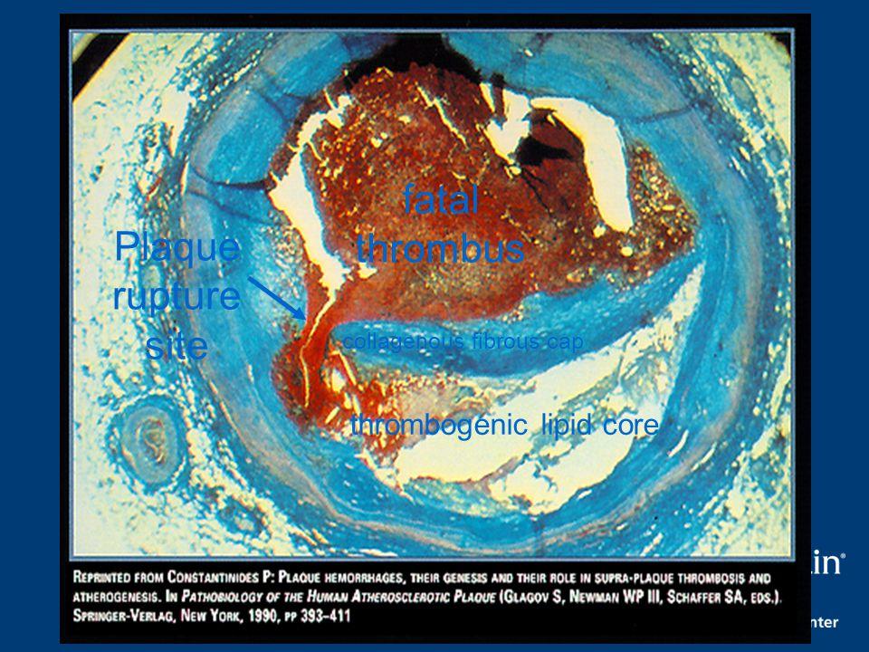 Plaque rupture site fatal thrombus collagenous fibrous cap thrombogenic lipid core
