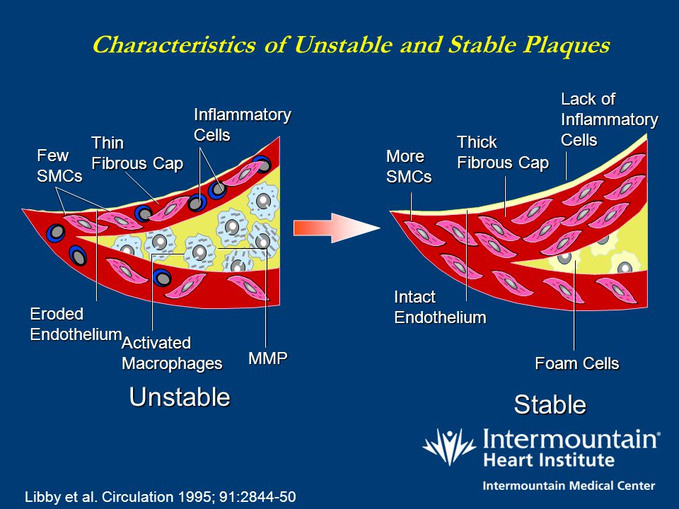 Characteristics of Unstable and Stable Plaques Thin Fibrous Cap Inflammatory Cells Few SMCs Unstable Eroded Endothelium Activated Macrophages Thick Fi
