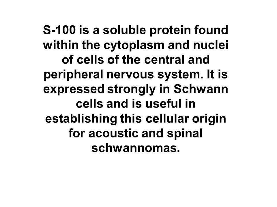The strong S-100 staining of melanocytes is also helpful in identifying amelanotic metastatic malignant melanomas.