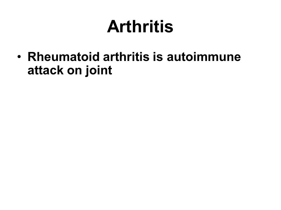 Arthritis Rheumatoid arthritis is autoimmune attack on joint