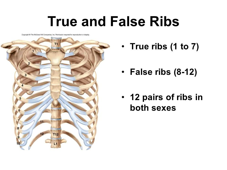 True and False Ribs True ribs (1 to 7) False ribs (8-12) 12 pairs of ribs in both sexes