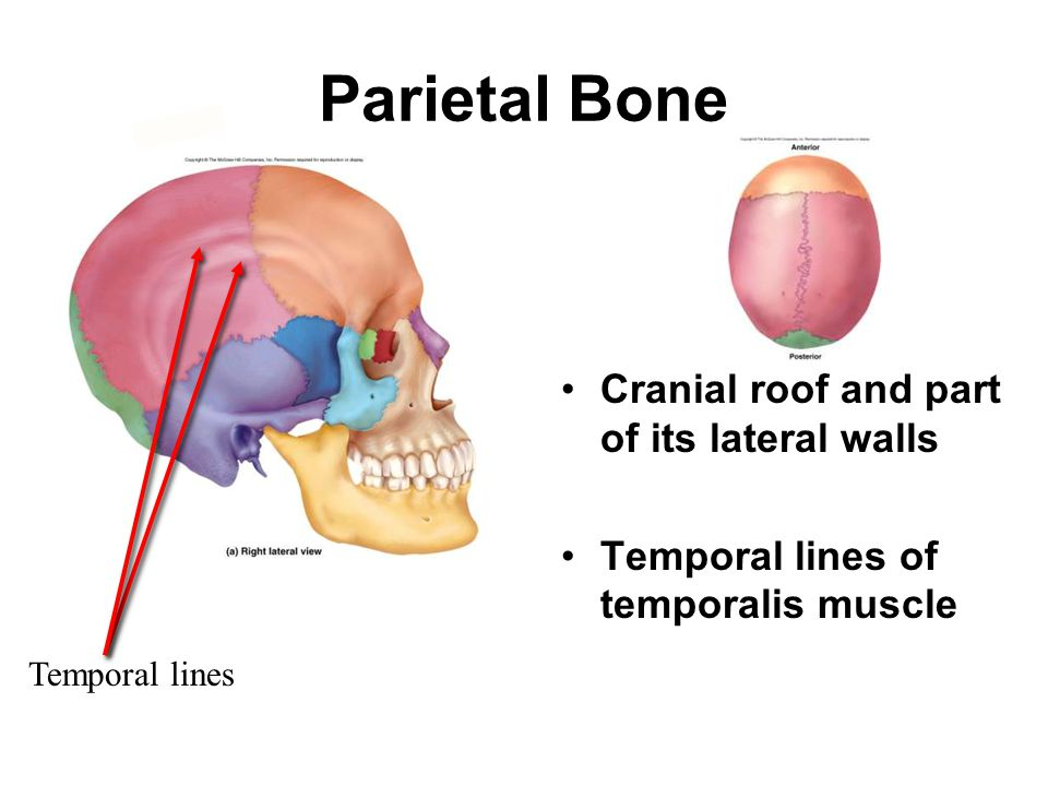 Parietal Bone Cranial roof and part of its lateral walls Temporal lines of temporalis muscle Temporal lines