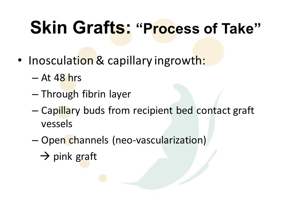Skin Grafts: Process of Take Inosculation & capillary ingrowth: – At 48 hrs – Through fibrin layer – Capillary buds from recipient bed contact graft vessels – Open channels (neo-vascularization)  pink graft
