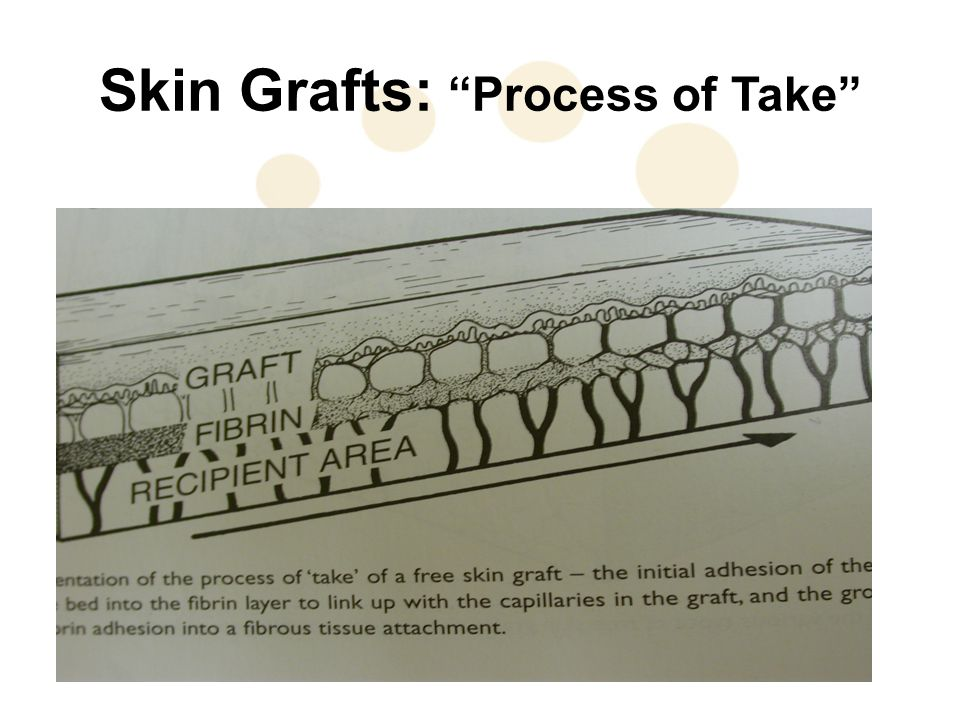 Skin Grafts: Process of Take
