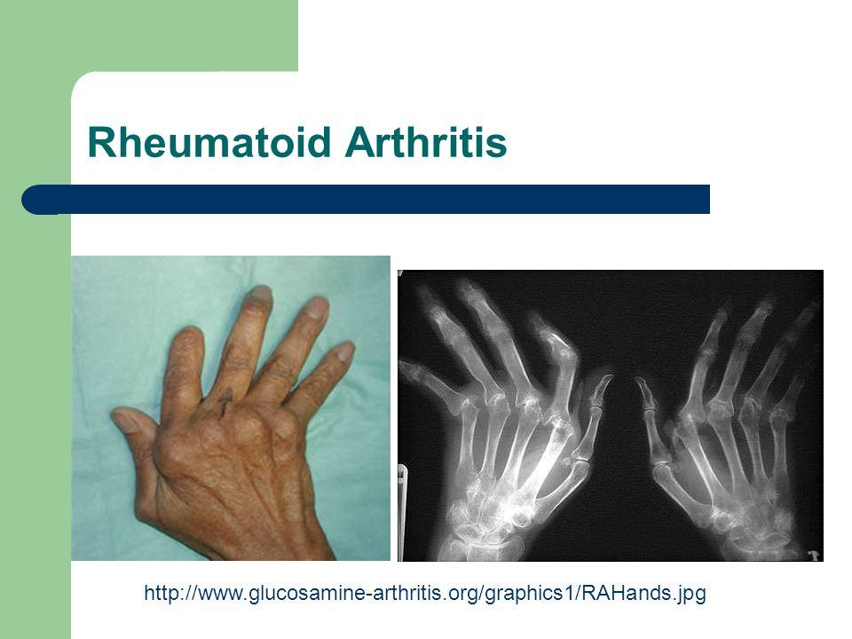 Rheumatoid Arthritis http://www.glucosamine-arthritis.org/graphics1/RAHands.jpg