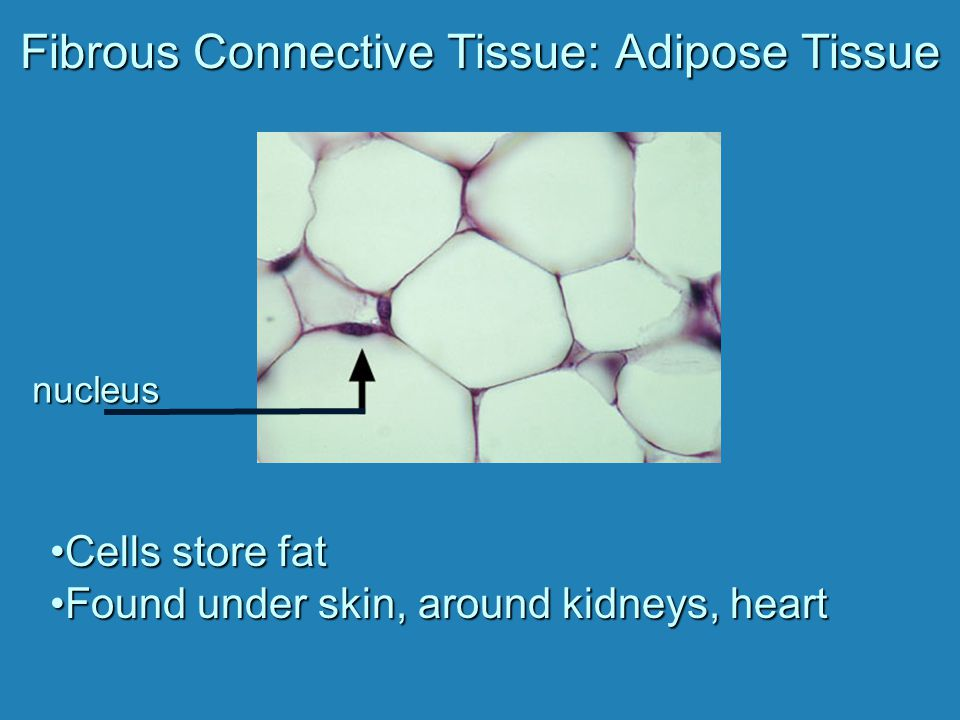 Supportive Connective Tissue: Cartilage Solid, flexible matrixSolid, flexible matrix Cells located in chambers – lacunaeCells located in chambers – lacunae Hyaline cartilage --most common --contains fine collagen fibers --nose, ends of long bones and ribs, walls of respiratory passages Elastic cartilage --elastin fibers --more flexible --outer ear Fibrocartilage --strong collagen fibers --between vertebrae and in knee joint