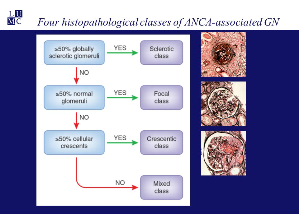 Four histopathological classes of ANCA-associated GN