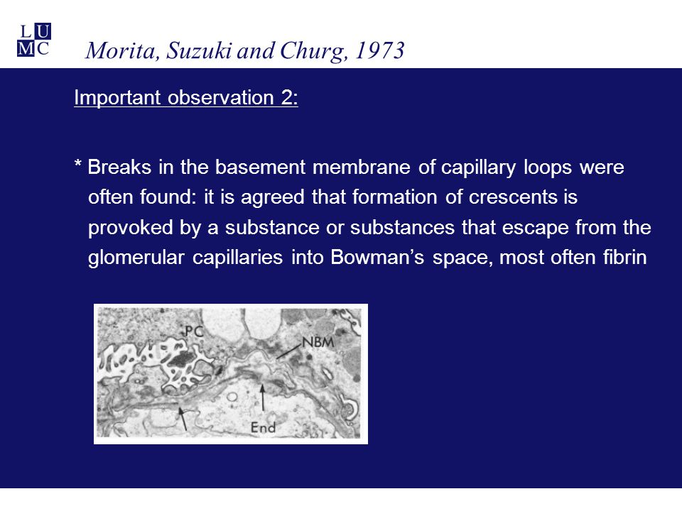 Morita, Suzuki and Churg, 1973 Important observation 2: * Breaks in the basement membrane of capillary loops were often found: it is agreed that formation of crescents is provoked by a substance or substances that escape from the glomerular capillaries into Bowman's space, most often fibrin