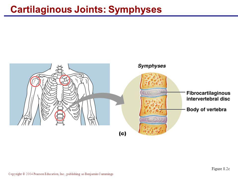 Copyright © 2004 Pearson Education, Inc., publishing as Benjamin Cummings Cartilaginous Joints: Symphyses Figure 8.2c