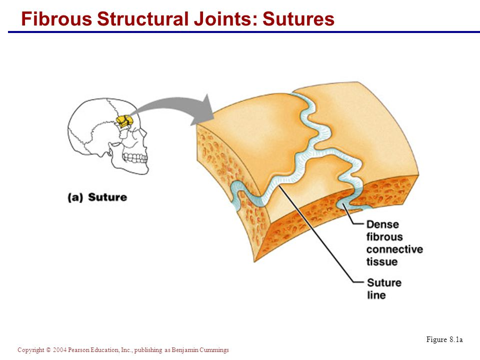Copyright © 2004 Pearson Education, Inc., publishing as Benjamin Cummings Fibrous Structural Joints: Sutures Figure 8.1a