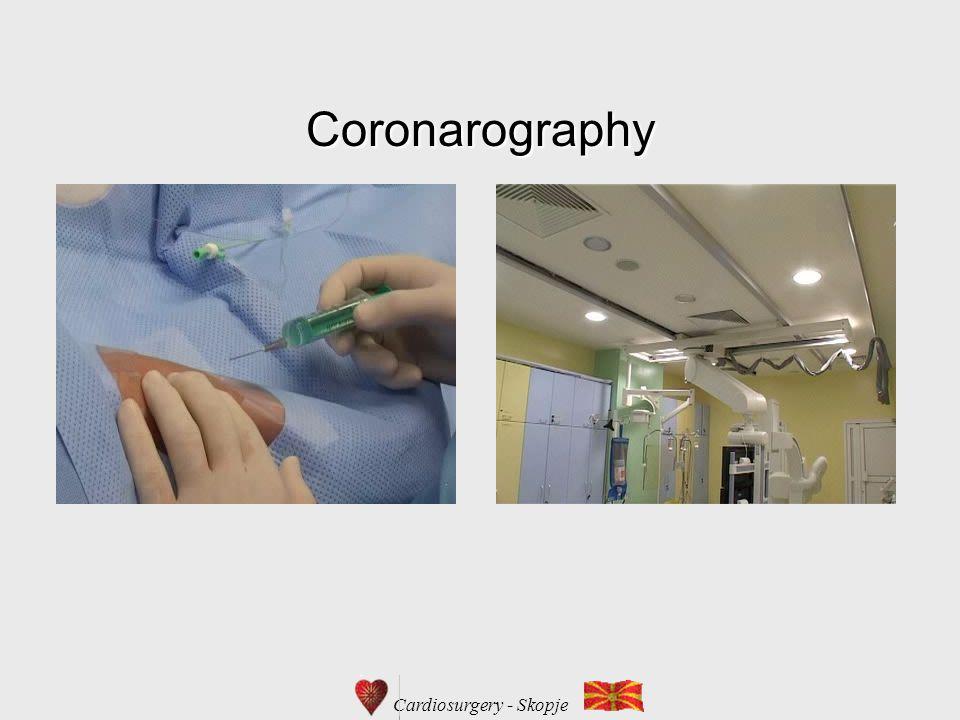Coronarography