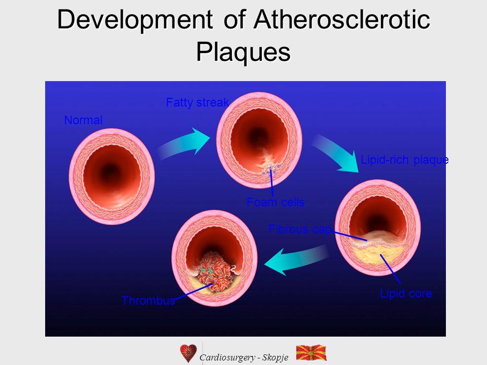 Cardiosurgery - Skopje Development of Atherosclerotic Plaques Normal Fatty streak Foam cells Lipid-rich plaque Lipid core Fibrous cap Thrombus